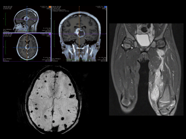 Pediatric MRI course image