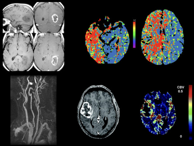 Gadolinium-Based Contrast Agents (GBCAs) Use in Adult Neuro MRI course image