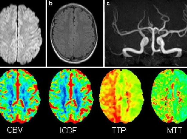 Perfusion MRI course image